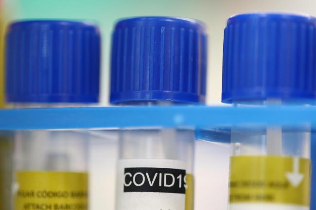 Imuniti Kelompok Coronavirus di U.K akan gagal ?