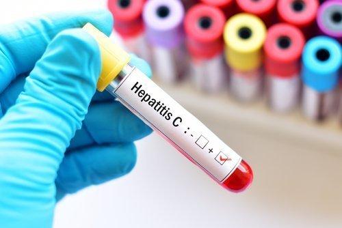 Adakah minyak CBD mampu menyembuhkan Hepatitis C ?