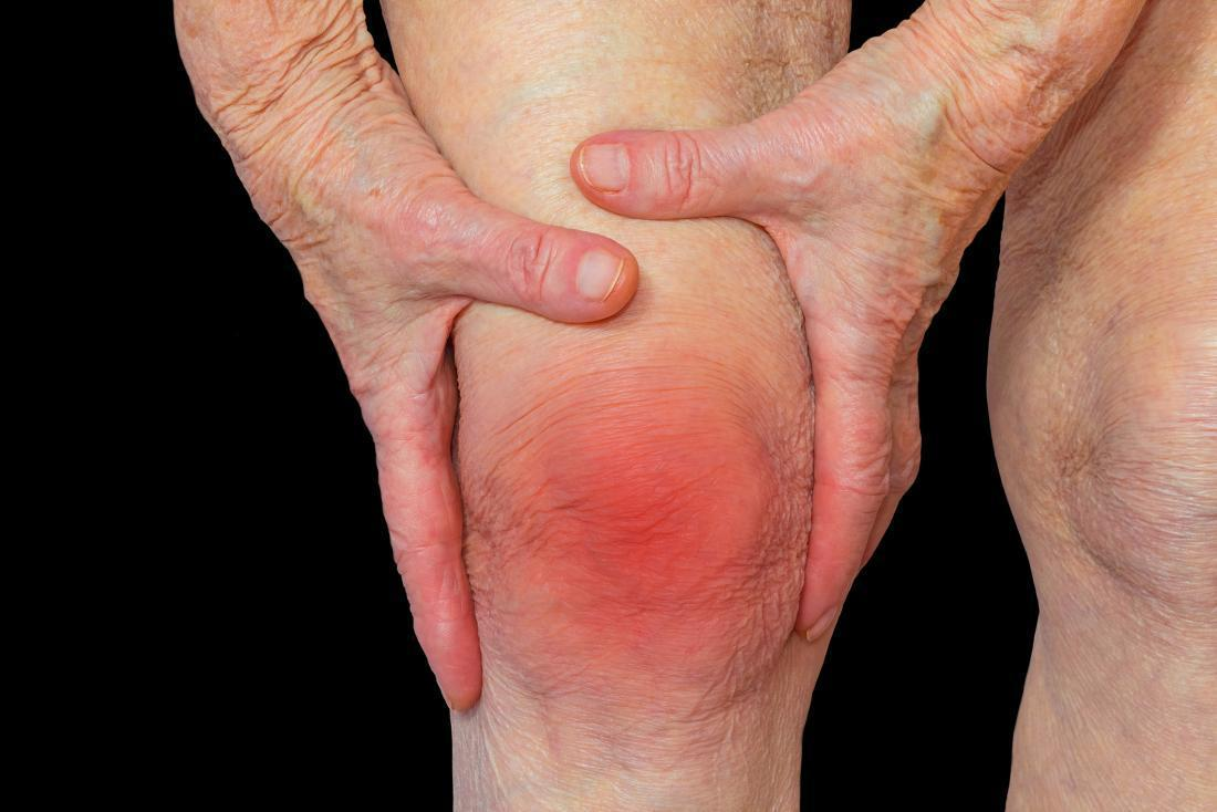 Rheumatoid arthritis (RA): Symptoms, causes, and complications