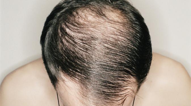 Biotin untuk pertumbuhan rambut : Adakah ia memang berhasil ?