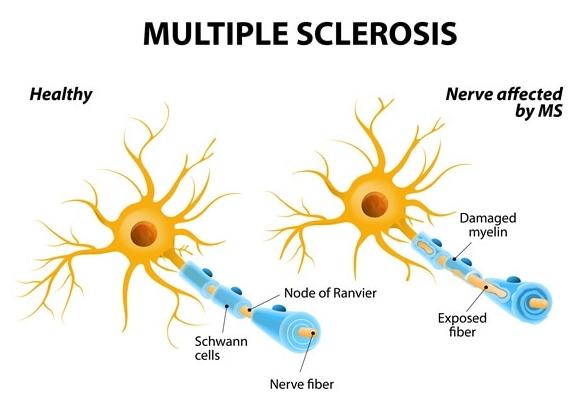 Memahami gejala Multiple Sclerosis dan komplikasinya