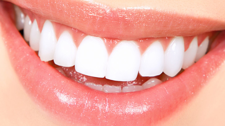 How Much does Teeth Whitening Cost in London?
