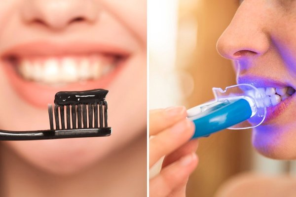 Teeth Whitening by Dentists vs Salons vs OTC Products Reviews