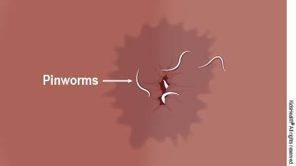 Gejala dan bagaimanakah jangkitan Pinworm boleh berlaku